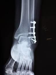 zlomena noha
